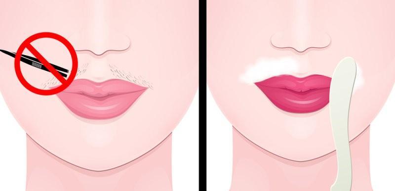 депиляция над верхней губой в домашних условиях
