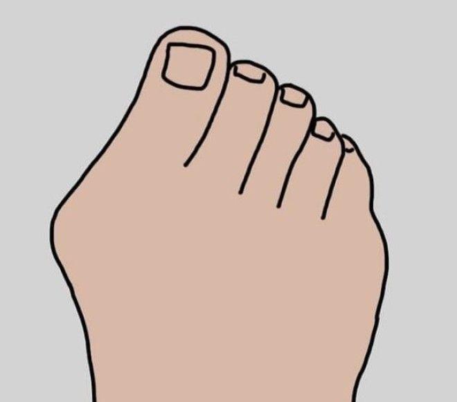 Как убрать косточку выпирающую на ноге