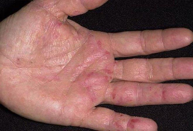 лечение кожных заболеваний имбирем