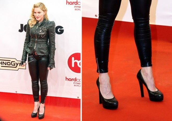 Фото некрасивых женских ног — photo 10
