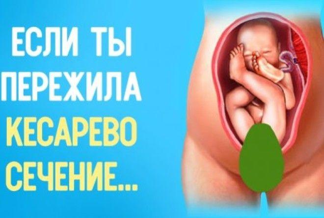 Эту истину знают лишь матери, пережившие кесарево!